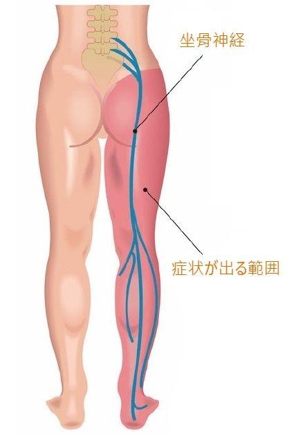 坐骨神経痛には鍼灸治療?! | 武蔵小杉はりきゅうここわ